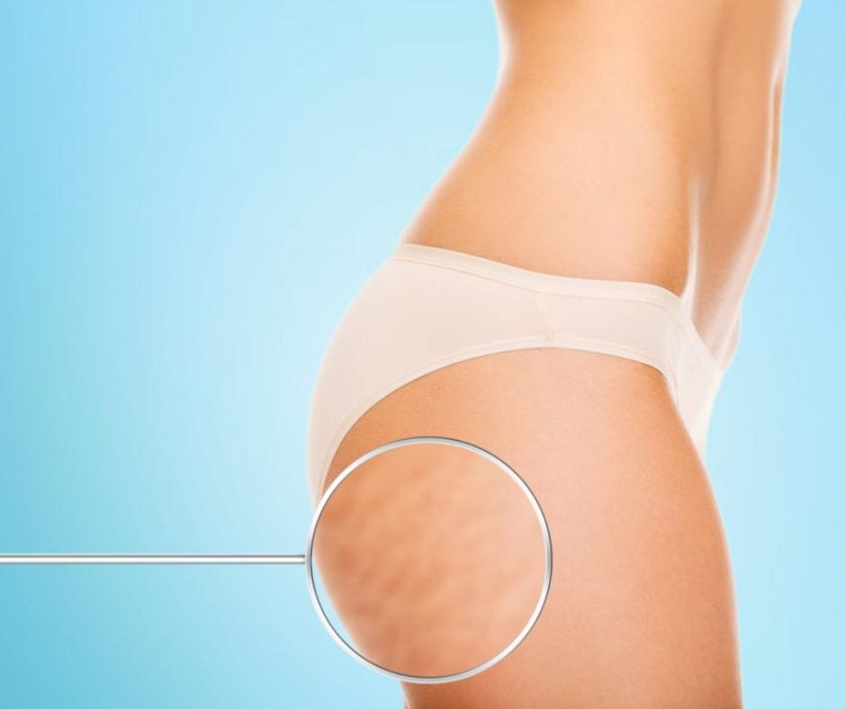 cellulite_little_known_facts