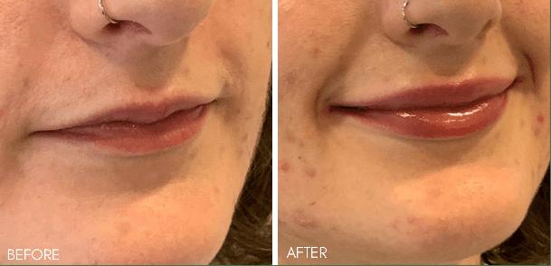 lip_filler_before_after_2