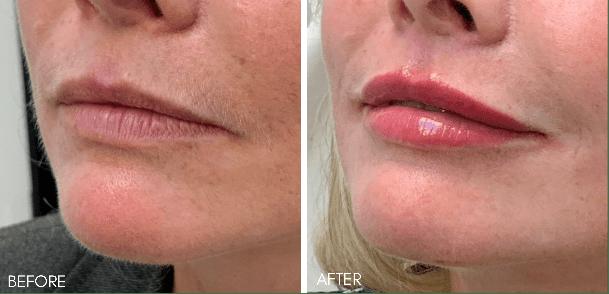 lip_filler_before_after_
