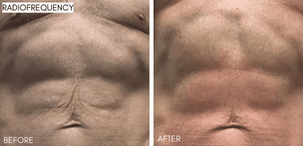3d_lipo_radiofrequency_