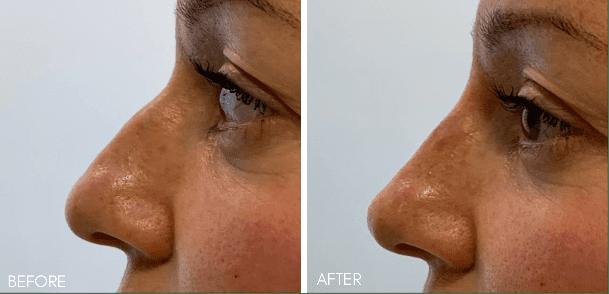 non_surgical_nose_job_