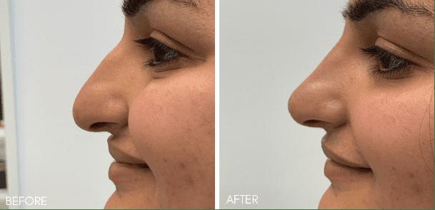 non_surgical_nose_job_2
