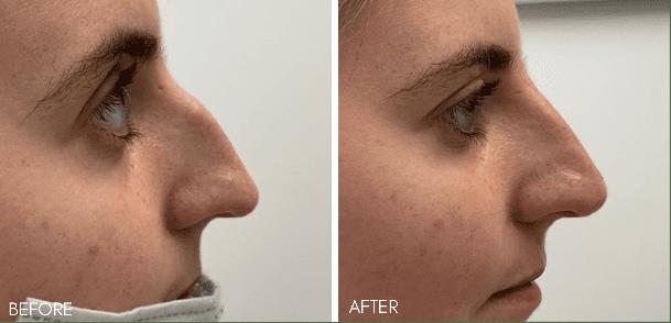 non_surgical_nose_job_3