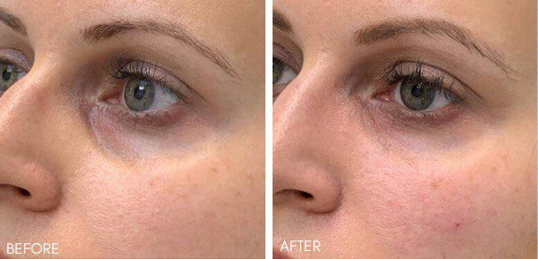 tear trough filler, tear trough before and after