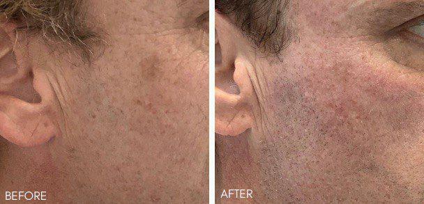 superfacials, skin rejuvenation