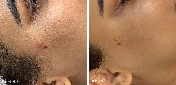 microneedling, skin rejuvenation, acne