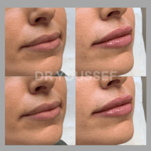 before & after lip fillers witih Dr Youssef