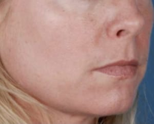 ZO_Skin_Health_Ageing_After