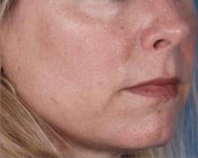 ZO_Skin_Health_Ageing_Before
