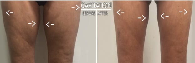 before & after image of inner thighs after cavitation treatment