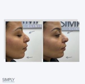facial_balancing_profile_before_and_after