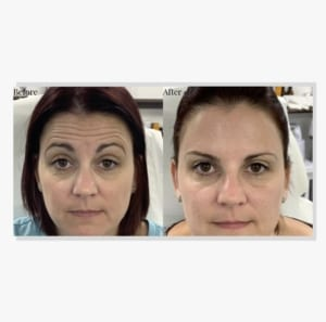 forehead_lines_before_and_after