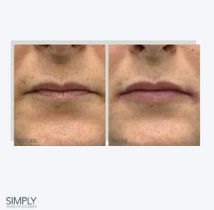 lip__dermal_filler_anti_ageing