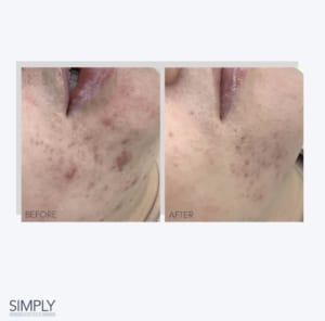 microneedling_acne_results