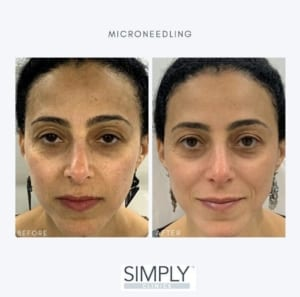 microneedling_pigmentatino_before_and_after