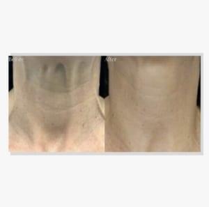 neck_lift