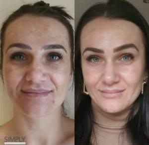 obagi_nu_derm_before_and_after