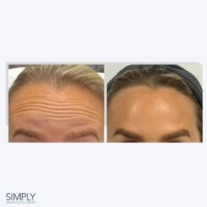 anti_wrinkle_injections_anti_ageing_in_your_20s