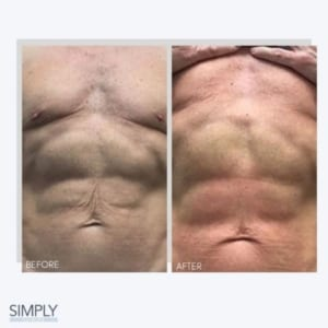 body_tweakments_3d_lipo_stomach
