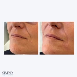 naso_labial_folds_anti_ageing_in_your_20s