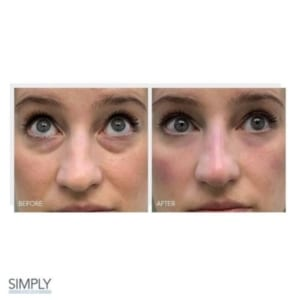 tear_trough_filler_anti_ageing_in_your_20s