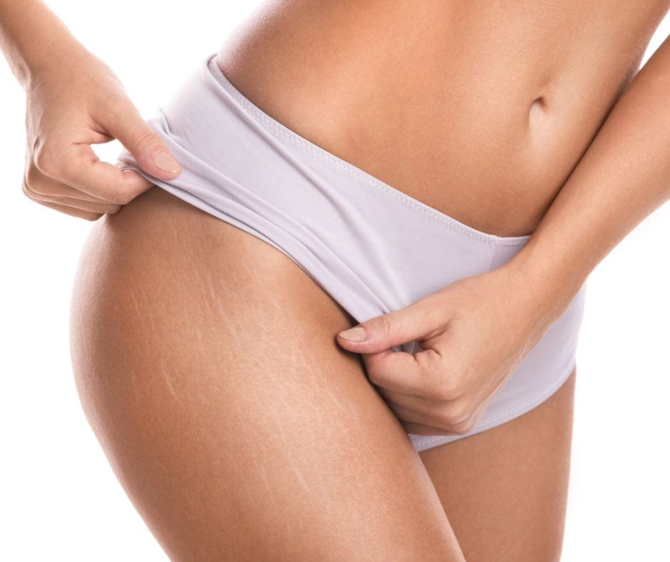 how_to_fade_stretch_marks_image