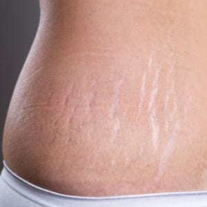 how_to_fade_stretch_marks_image_2