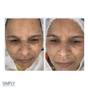 microneedling_for_pigmentation